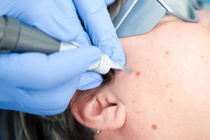 huidkliniek-amsterdam-zuid-lasertherapie-bloedvaatjes-huid