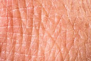 huidkliniek-amsterdam-zuid-zeer-droge-huid