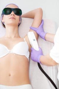 IPL lasertherapie (ontharen)