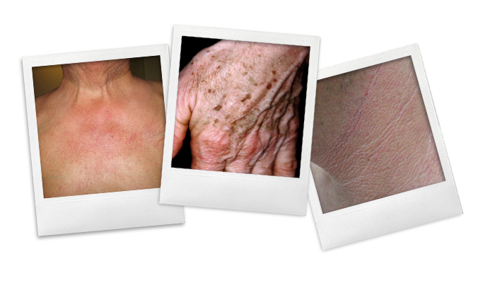 POLAROID2NW_huidveroudering