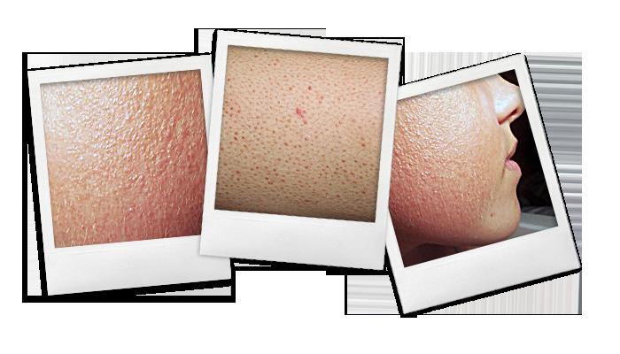 POLAROID2NW_hyperkeratosis pilaris