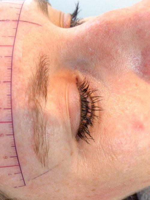 dermatografie_litteken_voor